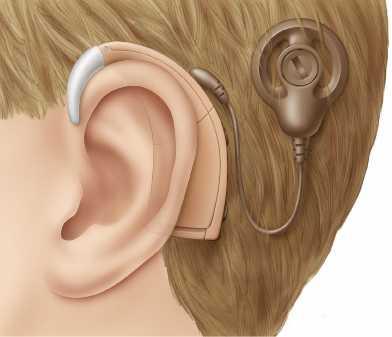 Processor on ear